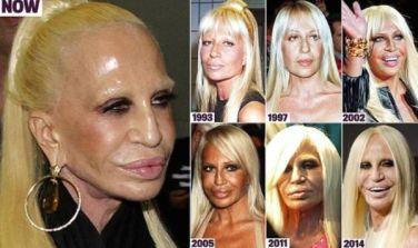 Donatella-Versace-bad-plastic-surgery