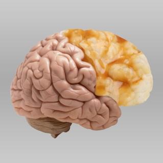 Hypophrenic brain