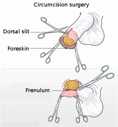 Circumcision_illustration